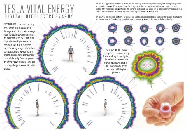 TESLA VITAL ENERGYDIGITAL BIDELECTRDGRAPHY GDV TESLABIO is a method of diag nosis of the human organismo through applicat...