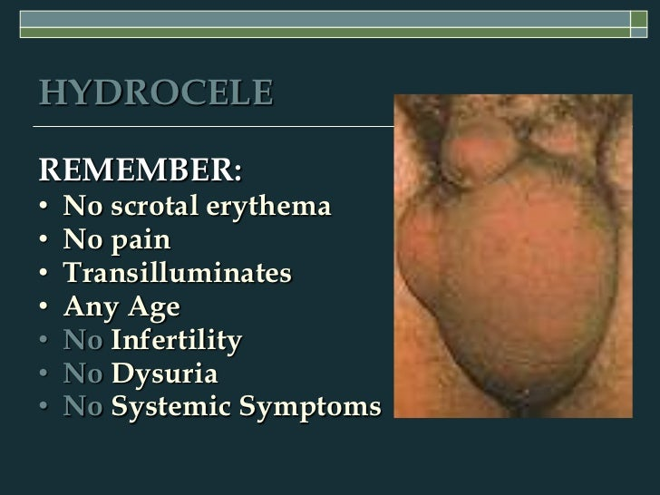 can a hydrocele cause erectile dysfunction