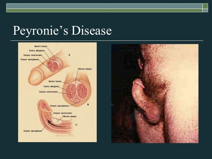 Testicular Disorders & Erectile Dysfunction