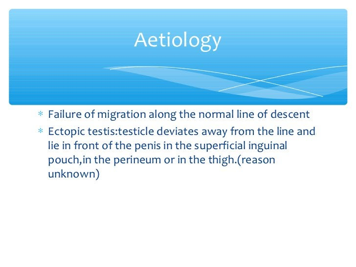 Aetiology∗ Failure of migration along the normal line of descent∗ Ectopic testis:testicle deviates away from the line and ...