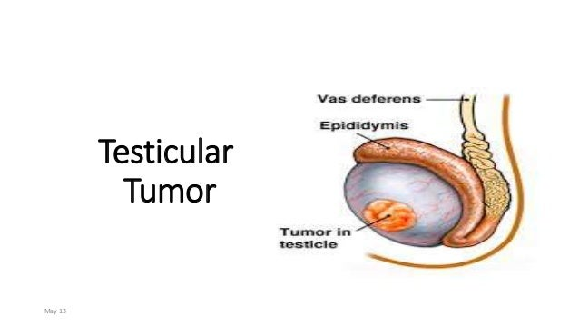 Testicular Tumor May 13