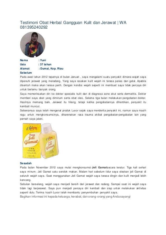 Testimoni Obat Herbal Gangguan Kulit dan Jerawat | WA 081395240292 Nama : Yuni Usia : 37 tahun Alamat : Dumai, Kep. Riau S...