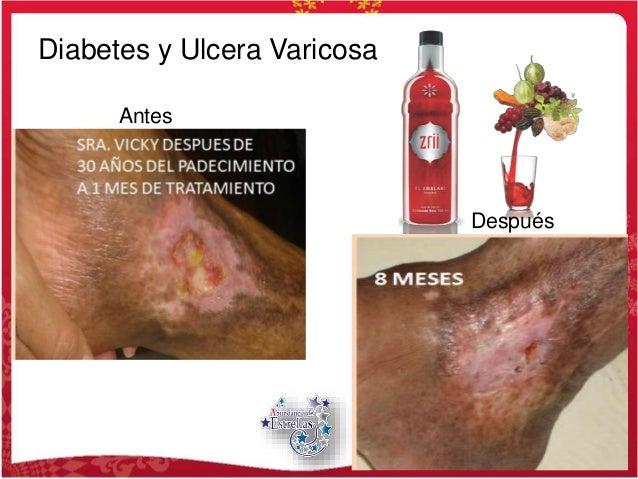 Antes Después Diabetes y Ulcera Varicosa