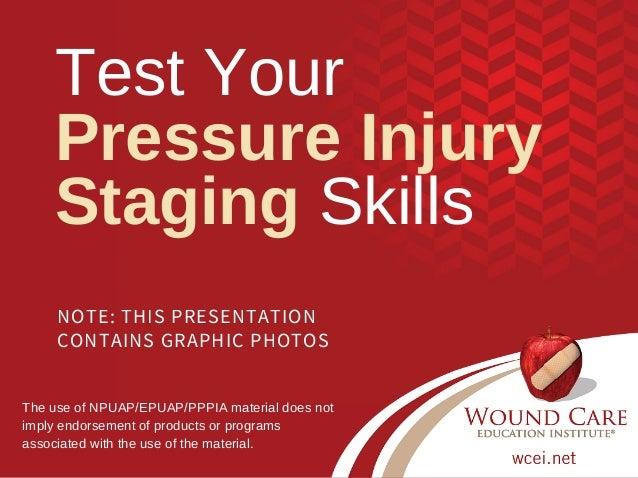NOTE: THIS PRESENTATION CONTAINS GRAPHIC PHOTOS Test Your Pressure Injury Staging Skills  The use of NPUAP/EPUAP/PPPIA mat...