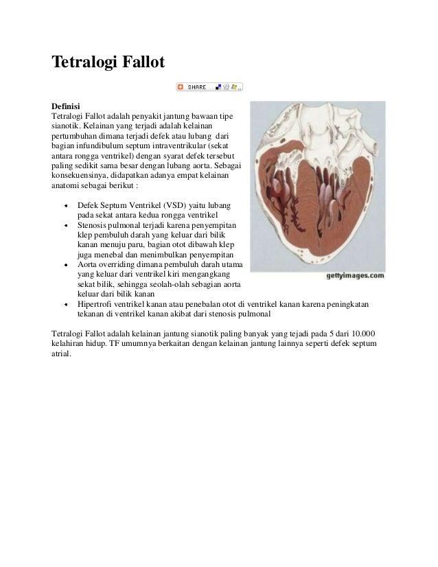 Tetralogi Fallot Definisi Tetralogi Fallot adalah penyakit jantung bawaan tipe sianotik. Kelainan yang terjadi adalah kela...