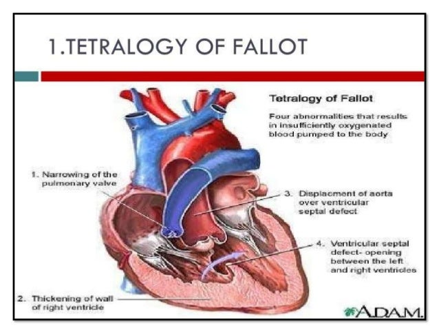 tetralogy of fallot Tetralogy of fallot (teh-tral-uh-jee of fuh-low) is a rare condition caused by a combination of four heart defects that are present at birth (congenital) these defects, which affect the structure of the heart, cause oxygen-poor blood to flow out of the heart and to the rest of the body.