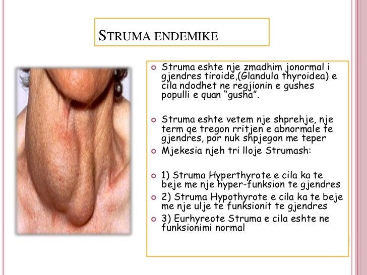 STRUMA ENDEMIKE         Struma eshte nje zmadhim jonormal i          gjendres tiroide,(Glandula thyroidea) e          cil...