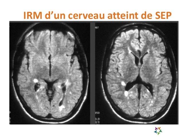 IRM de la moëlle atteinte de SEP