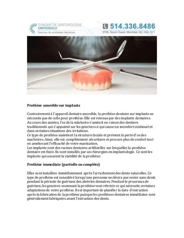 Prothèse amovible sur implants Contrairement à l'appareil dentaire amovible, la prothèse dentaire sur implants ne nécessit...