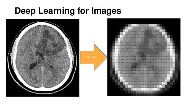 Introduction to Machine Learning and Texture Analysis for Lesion Char…
