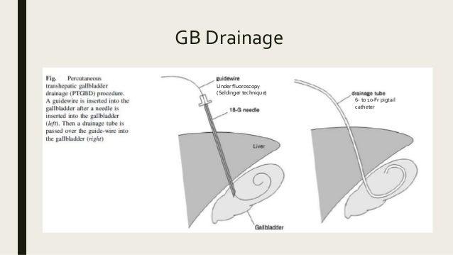 GB Drainage 6- to 10-Fr pigtail catheter Under fluoroscopy (Seldinger technique)