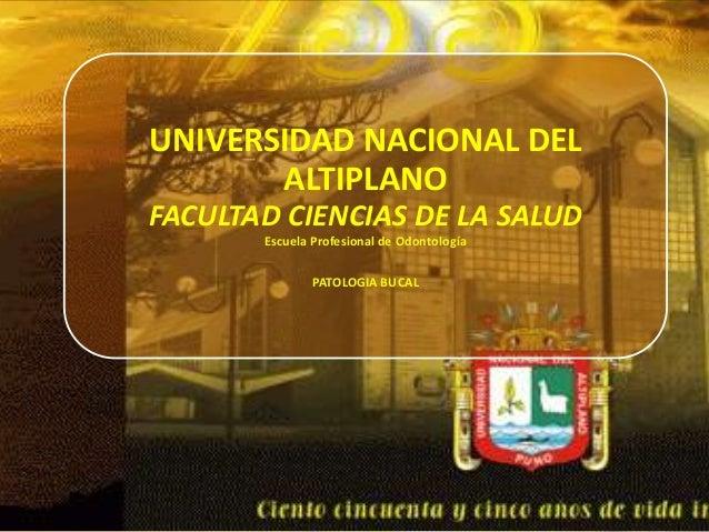UNIVERSIDAD NACIONAL DEL ALTIPLANO FACULTAD CIENCIAS DE LA SALUD Escuela Profesional de Odontología PATOLOGIA BUCAL
