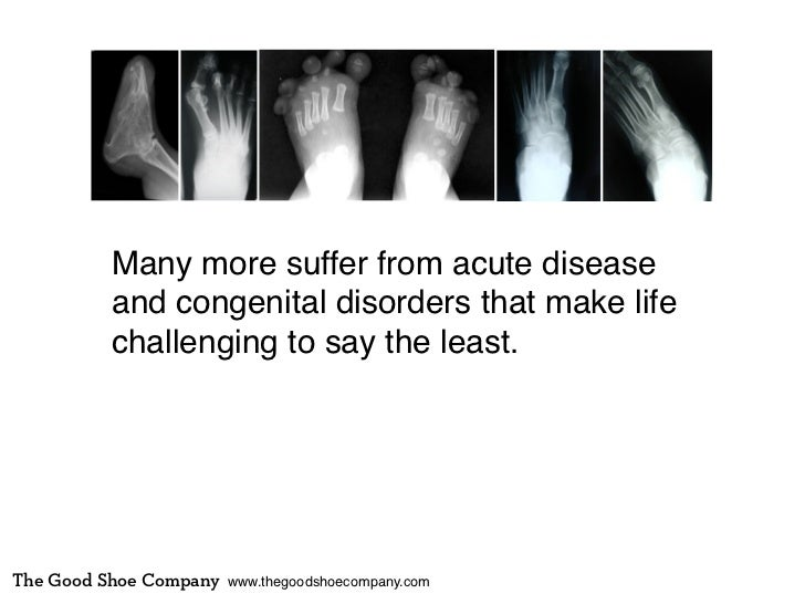 Many more suffer from acute disease          and congenital disorders that make life          challenging to say the least...