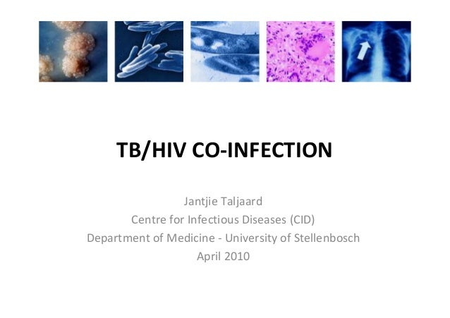 TB/HIV CO-INFECTION Jantjie Taljaard Centre for Infectious Diseases (CID) Department of Medicine - University of Stellenbo...