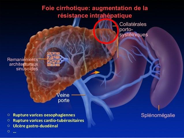 H 233 Morragie De L Hypertension Portale Place Du Tips Et De La Proth 232 S