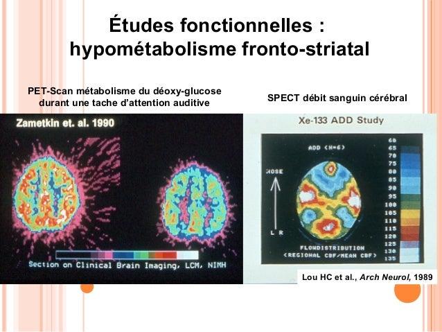 IRMf dans une tache d'inhibition exécutive                     (Stop Task) dans les TDAH                                  ...