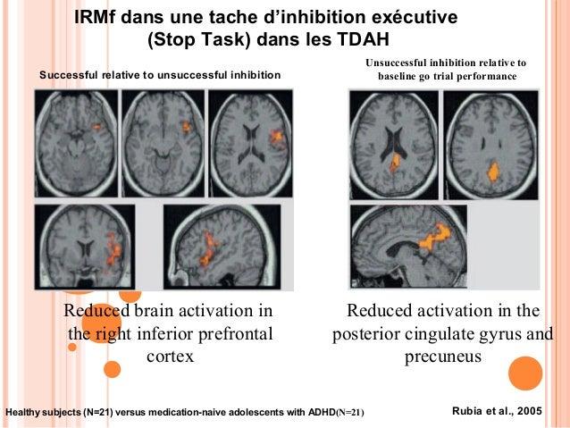 Neurobiologie du TDAH• Dopamine  -Hypoactivité DA corticale (dysfonction  exécutive), hyperactivité DA sous-corticale  (hy...