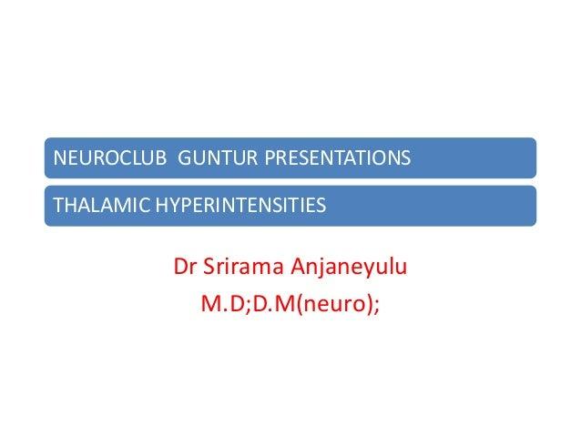 NEUROCLUB GUNTUR PRESENTATIONSTHALAMIC HYPERINTENSITIES          Dr Srirama Anjaneyulu            M.D;D.M(neuro);