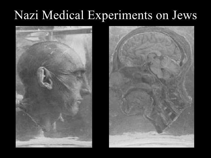 medical experiments of the holocaust thesis