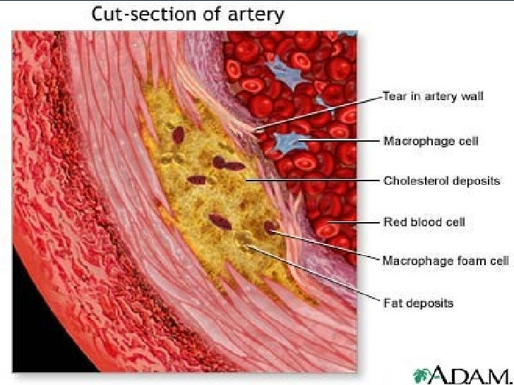 atherosclerosis and age Diseases of the aorta online medical reference the incidence of aortic diseases is expected to rise with the increasing age of the population atherosclerosis.