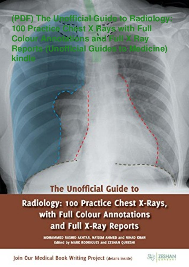 (PDF) The Unofficial Guide to Radiology: 100 Practice Chest X Rays with Full Colour Annotations and Full X Ray Reports (Un...