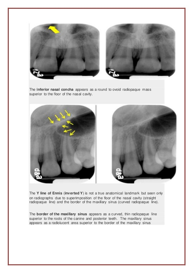The anterior portion of intraoral radiographs