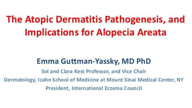 The Atopic Dermatitis Pathogenesis, and Implications for Alopecia Areata Emma Guttman-Yassky, MD PhD Sol and Clara Kest Pr...