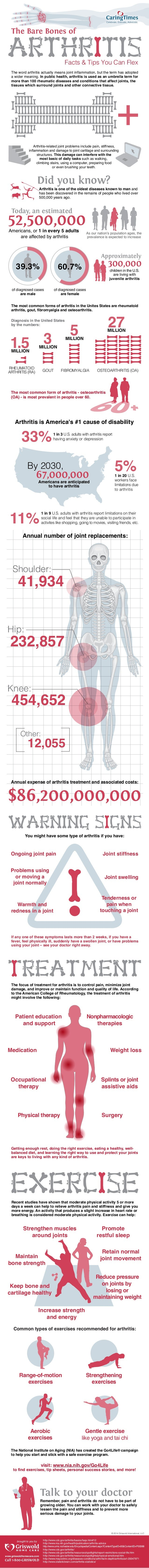 Arthritis is America's #1 cause of disability The Bare Bones of Facts & Tips You Can Flex The most common form of arthriti...