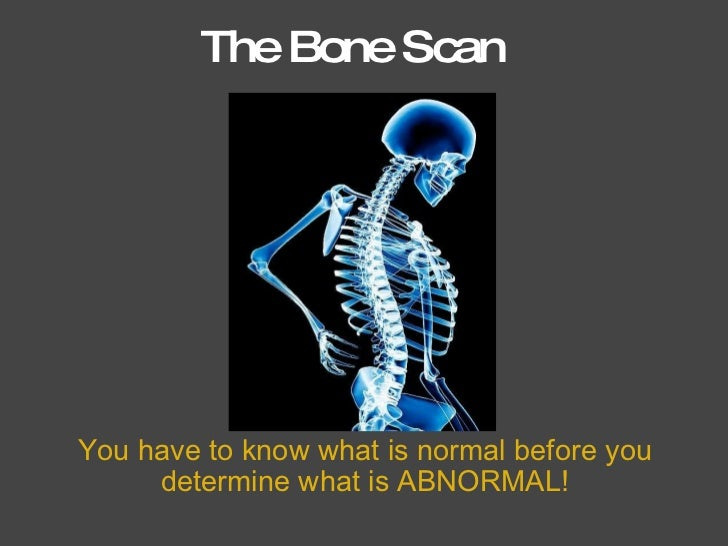 The Bone Scan You have to know what is normal before you determine what is ABNORMAL!