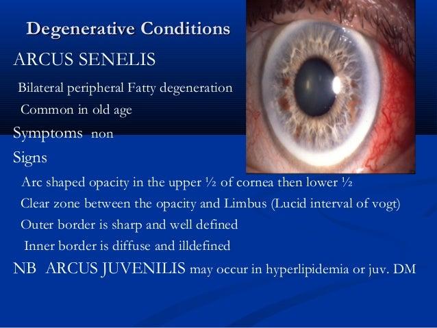 Arcus Juvenilis all about cornea