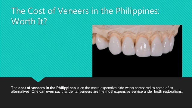 How much do veneers cost per tooth in philippines