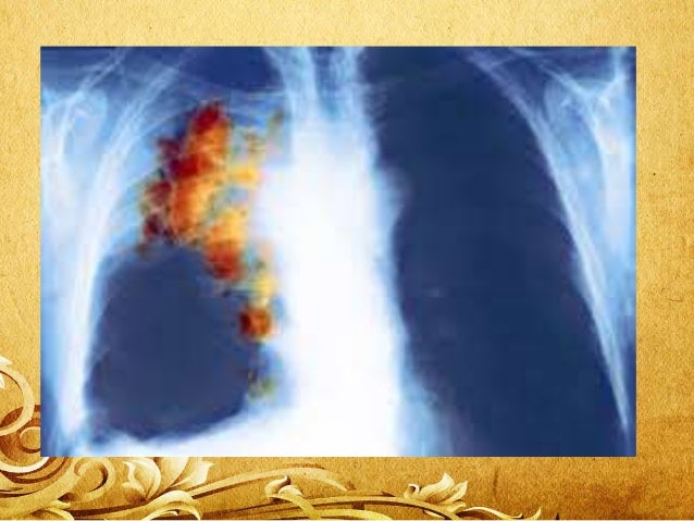 """Causes of lung cancer • universally accepted cause of lung cancer is """"Smoking"""". Despite this, there are many other sources..."""