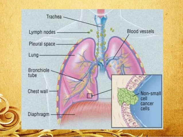 Preventive methods • The lung cancer prevention should be taken as the mandate for the people with the family history of l...