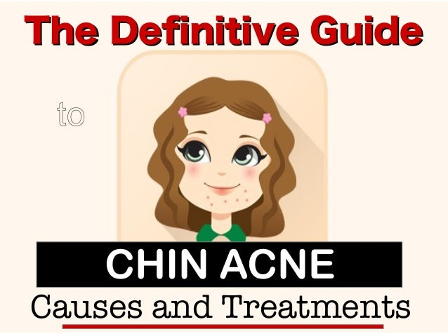 The Definitive GuideThe Definitive Guide to Causes and Treatments CHIN ACNE