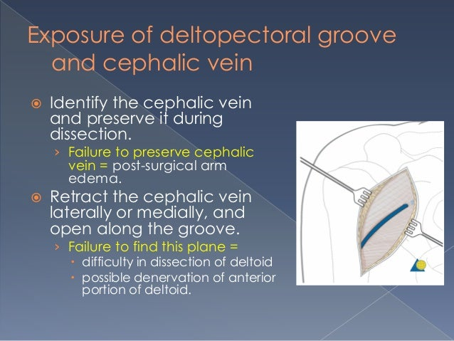 the deltopectoral approach, Cephalic Vein