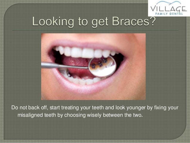 The differences between fastbraces and traditional braces