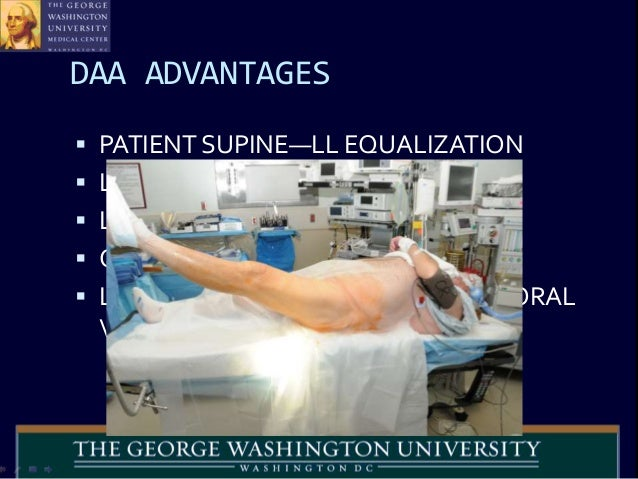 Hana Table Anterior Hip Replacement The Direct Anterior Hip Replacement