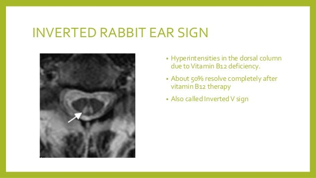 Ear Signs In Radiology