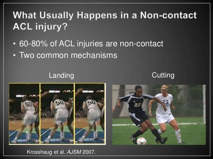 The ACL tear: An athlete's worst nightmare
