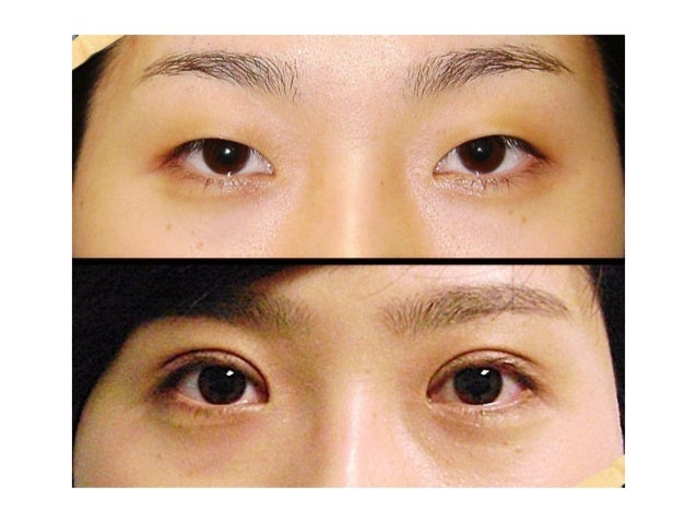 korean eye surgery