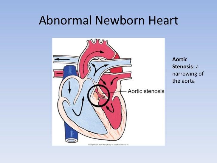 Newborn Heart Anatomy Imagenesmy