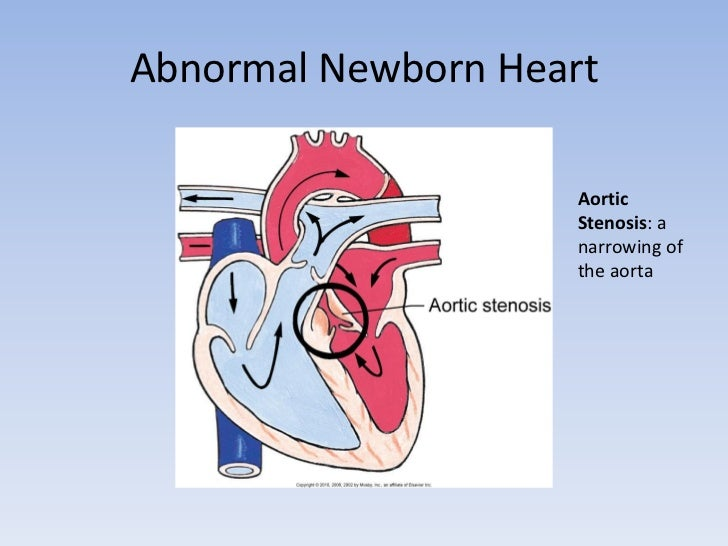 The fetal and newborn heart pdf