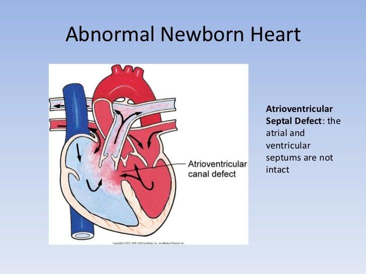 The Fetal And Newborn Heart Pdf
