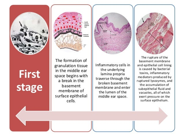 The formation and management of middle ear granulation