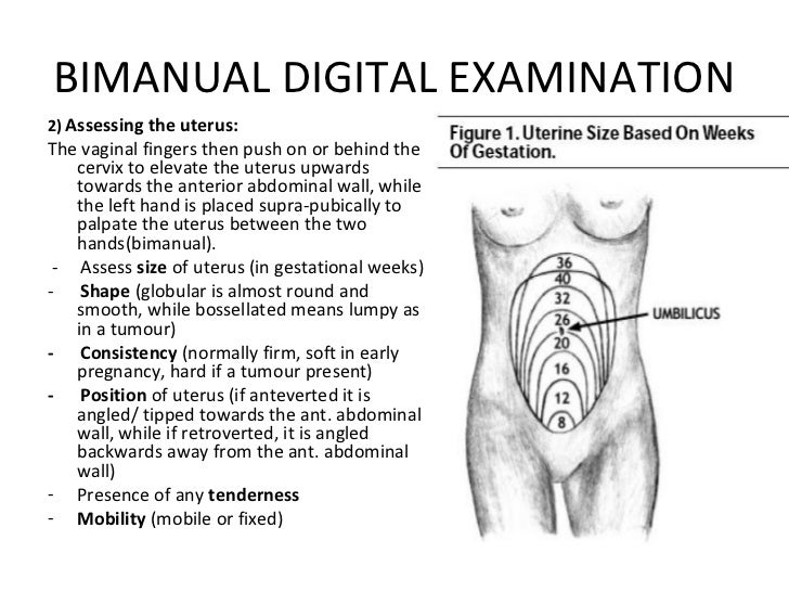 The gynaecological examination ppt