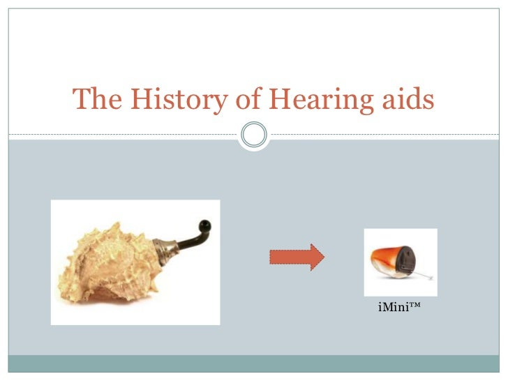 History of AIDS