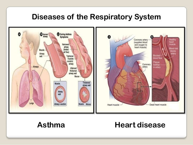 diseases of the respiratory system essay Respiratory system essay examples a look at popular diseases of the respiratory system (351 words, 2 pages) respiration is the process of taking in and using oxygen.