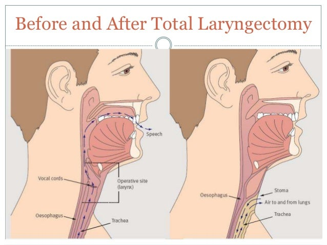 The laryngectomy patient