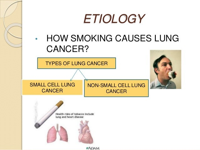 pathophysiology of lung cancer Lung cancer is usually caused by smoking - but not always researchers say that more than 90% of lung cancers in men and at least 70% in women are directly caused by cigarette smoking1lung cancer can also be caused by other things.