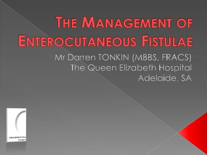 The Management of Enterocutaneous Fistulae<br />Mr Darren TONKIN (MBBS, FRACS)<br />The Queen Elizabeth Hospital<br />Adel...